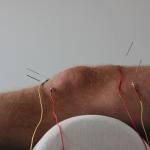 Pijnbestrijding en revalideren met acupunctuur